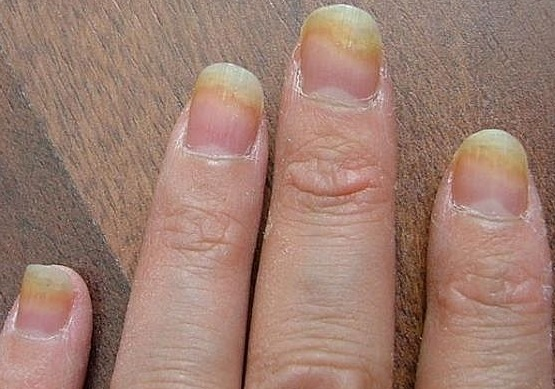 Fingernail Fungus Sometimes Though There Is No Reason Or Cause For The Infection Other Than Bad Luck They Are Common And Anyone Can Get Them